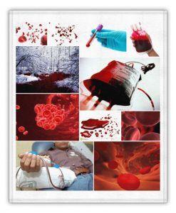 sueños con mucha sangre